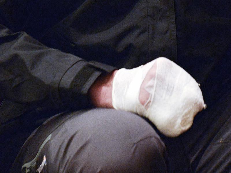 Магнитогорец, который обвиняет полицейских в изнасиловании жены, отрезал себе мизинец