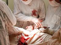 В Биробиджане прооперированный мужчина умер из-за забытой в его теле салфетки