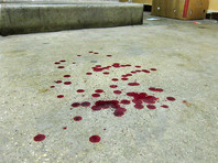 Больной раком пациент найден мертвым на лестнице больницы в Ростове-на-Дону