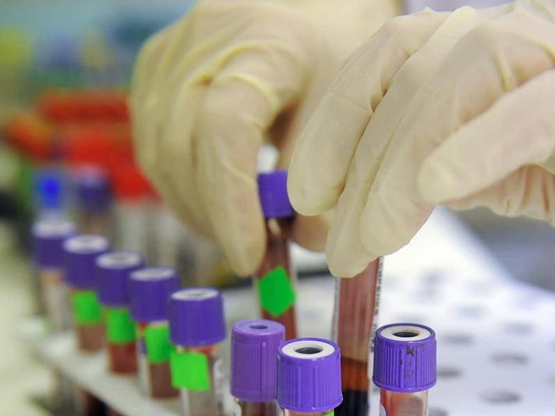 В Нижневартовске 62 ребенка переболели энтеровирусным менингитом, но карантин никто не объявлял
