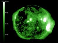 Новые мощные вспышки на Солнце вызвали солнцетрясение. Облака плазмы достигли Земли - началась магнитная буря 4-го уровня из 5