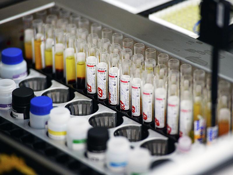 Заболеваемость острым гепатитом А в России за десять месяцев 2017 года выросла на 47,7% по сравнению с аналогичным периодом 2016 года