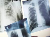 В бурятской школе вспышка туберкулеза: родителей уговаривают согласиться на химиопрофилактику для детей
