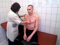 ФСИН опубликовала новую фотографию голодающего 139-й день Сенцова. Ему скорректировали лечение после консилиума
