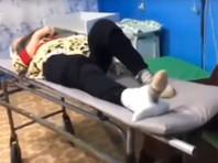 В Башкирии пожилой пациентке с переломом шейки бедра наложили на ногу швабру (ВИДЕО)