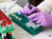 """По словам врача, подобные исследования делятся на два вида - предварительные исследования (экспресс-тесты) и лабораторные. """"Если предварительный анализ что-то показывает, дальше этот материал отправляется в химико-токсикологическую лабораторию, где уже на больших аппаратах проводятся или газовая хроматография, или жидкостная хроматография"""", - добавил Брюн."""