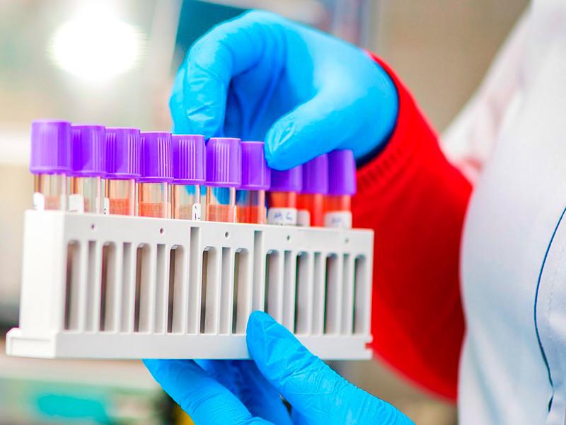 Департамент здравоохранения Москвы 14 марта заключил контракт с единственным поставщиком на покупку портативных лабораторий и тестов коронавируса COVID-19