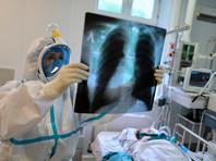 В России 8248 новых случаев коронавируса за сутки, 193 человека умерли