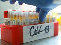 Суточный прирост новых заболевших коронавирусной инфекцией в России составил 7 867 новых случаев в 83 регионах. В Москве - 2 016 случаев заражения, и это максимум со 2 июня