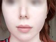 В полиции Чечни отказались возбуждать дело по заявлению девушки о пытках в клинике из-за ее сексуальной ориентации