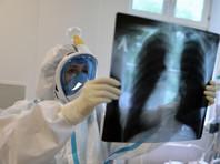 В России почти 9 тысяч новых случаев коронавируса за сутки