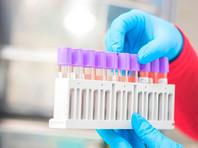 За последние сутки в России выявлено 24 763 случая коронавируса в 85 регионах - это максимум со 2 января, когда отмечался 26 301 случай заражения. Скончались за сутки 570 человек
