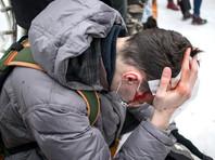 Полиция проводит более 100 проверок по жалобам на полицейское насилие на протестах в Москве