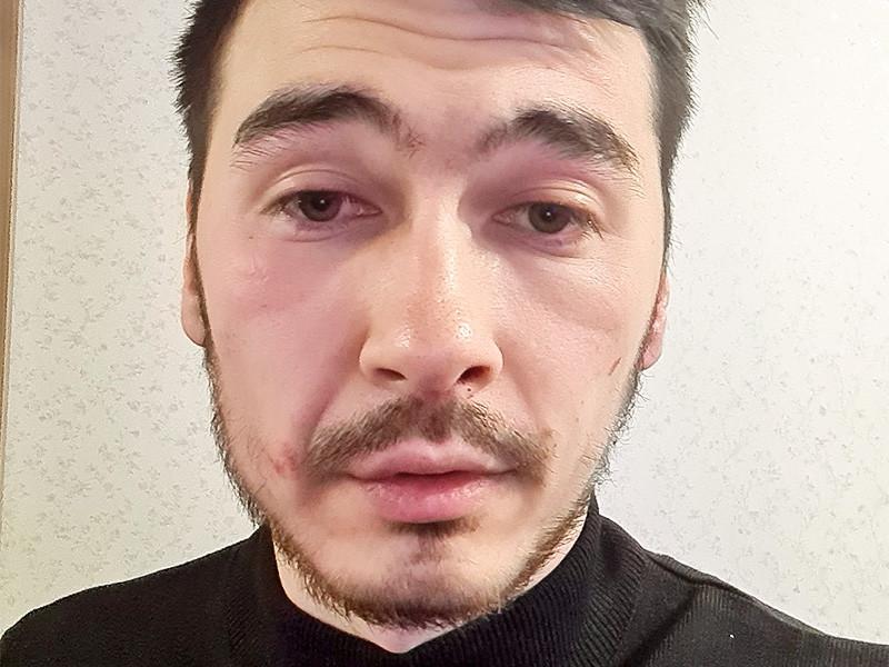 Руслан Аблякимов