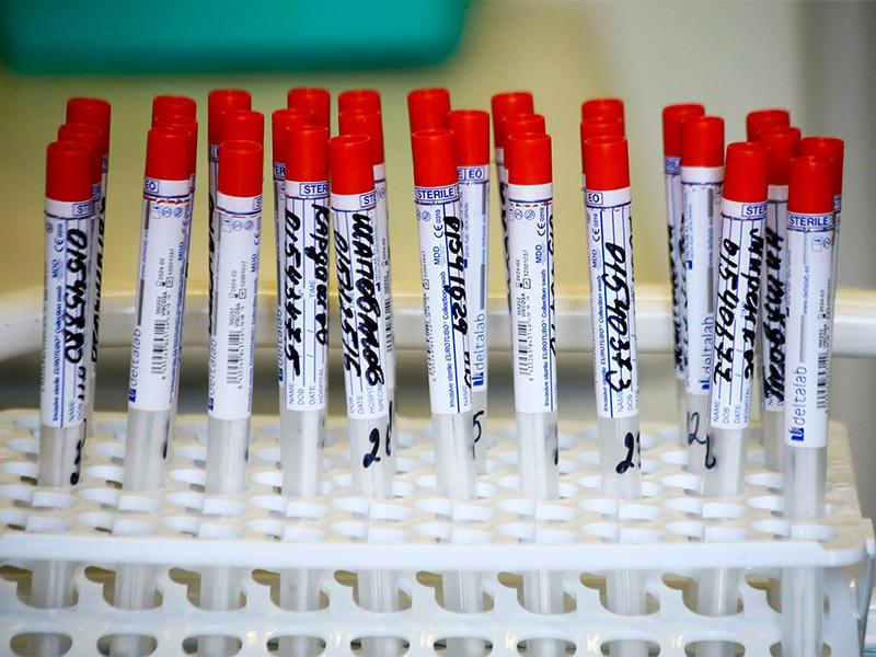 Суточный прирост новых заболевших от коронавируса в РФ составил 9 299 случаев