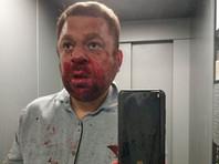 В ХМАО избит оппозиционный журналист Антон Пантин