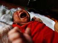 В Техасе подтвердили первую смерть младенца-микроцефала от вируса Зика