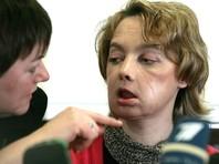 Во Франции скончалась первая в истории женщина с пересаженным лицом