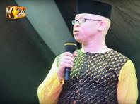 В Африке в противовес суевериям выбрали Мистера и Мисс альбинос (ФОТО,ВИДЕО)
