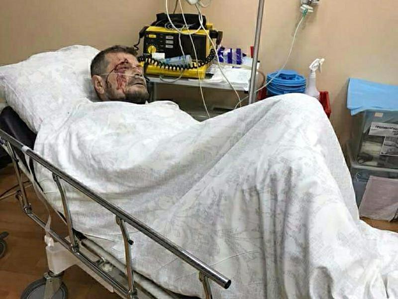 МВД Украины назвало заказчика покушения на Мосийчука и упомянуло Кадырова