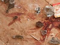 Как рассказал глава муниципалитета Оскар Анибаль Суарес, 11 пострадавших находятся в тяжелом состоянии