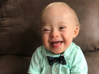 Полуторагодовалый малыш с синдромом Дауна стал лицом американского бренда детского питания (ФОТО)