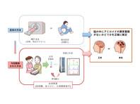 Японские ученые научились выявлять болезнь Альцгеймера по одной капле крови