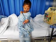 В Китае умерла студентка, пять лет питавшаяся из-за бедности рисом и перцем чили