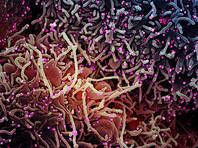 Всего в материковом Китае за истекшие сутки были зарегистрированы 14 подтвержденных случаев заражения COVID-19, выявлены еще 20 бессимптомных больных коронавирусной инфекцией, говорится на сайте Госкомздрава КНР
