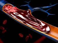 Ученые нашли причину внезапных смертей больных COVID-19 и резкого ухудшение их состояний: тромбоз выявлен у 70% пациентов