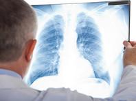 Посольство КНР в Казахстане объявило о новом смертельном виде пневмонии, Минздрав отрицает эту информацию