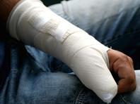 В Красноярском крае полицейские сломали руку прохожему, решив, что он пьян