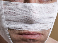 В Татарстане мужчина, откусивший нос шумному соседу, получил 3,5 года строгого режима