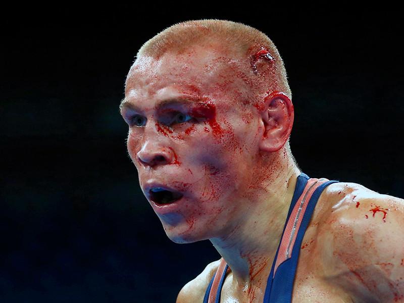 Российский боксер Владимир Никитин, который в четверг не смог выйти на полуфинальной бой олимпийского турнира в Рио-де-Жанейро в весовой категории до 56 кг из-за травмы, получил бронзовую медаль этих соревнований