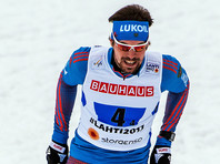 После успешного выступления на чемпионате мира лыжник Устюгов сбрил бороду