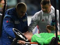 Испанцы нанесли вратарю сборной России Андрею Луневу скальпированную рану головы