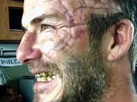 Дэвид Бэкхем напугал поклонников шрамом на все лицо, которым обзавелся для фильма Гая Ричи (ФОТО)