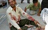 34 ребенка погибли при раздаче конфет солдатами США (ФОТО, ВИДЕО)