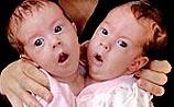 Врачи в США готовятся разделить сиамских близнецов