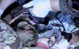 В приемной семье от побоев опять погиб малыш. В прошлом году в РФ было 1914 подобных случаев