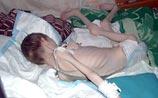 Скандал вокруг Павловского интерната: в Сети появилось пугающее фото ребенка оттуда